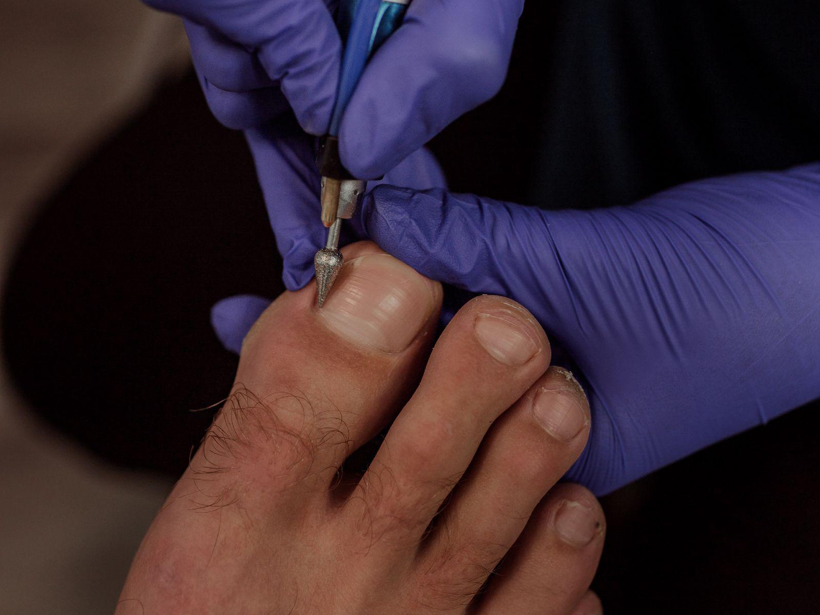 LCN nagelreparatie